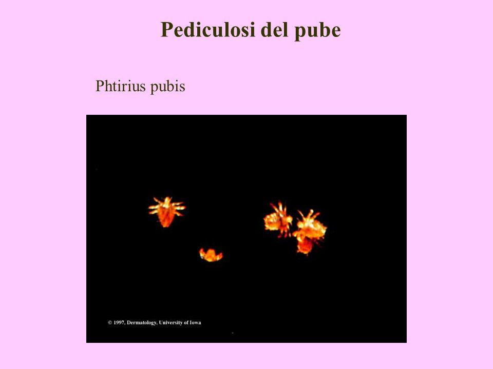 Pediculosi del pube Phtirius pubis