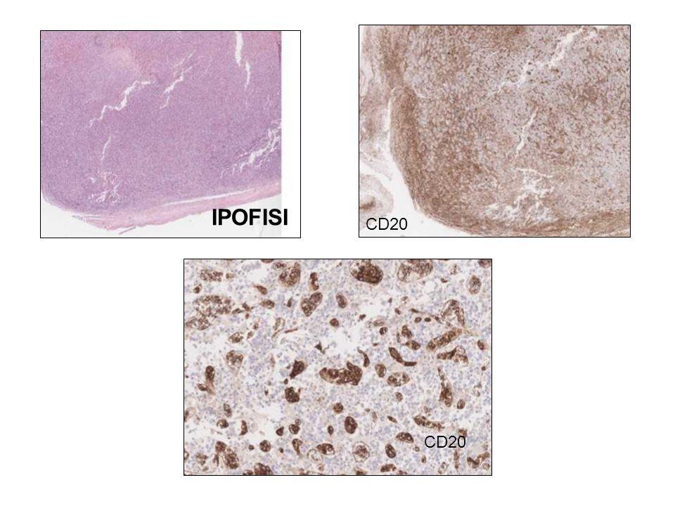 IPOFISI CD20 CD20