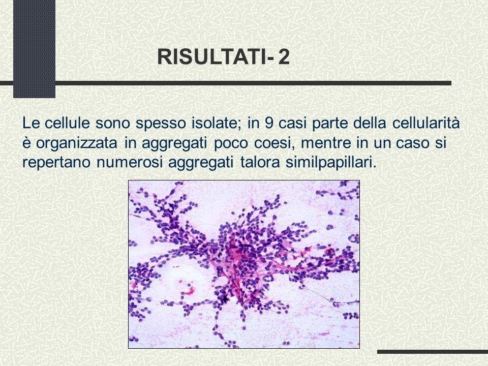 RISULTATI- 2