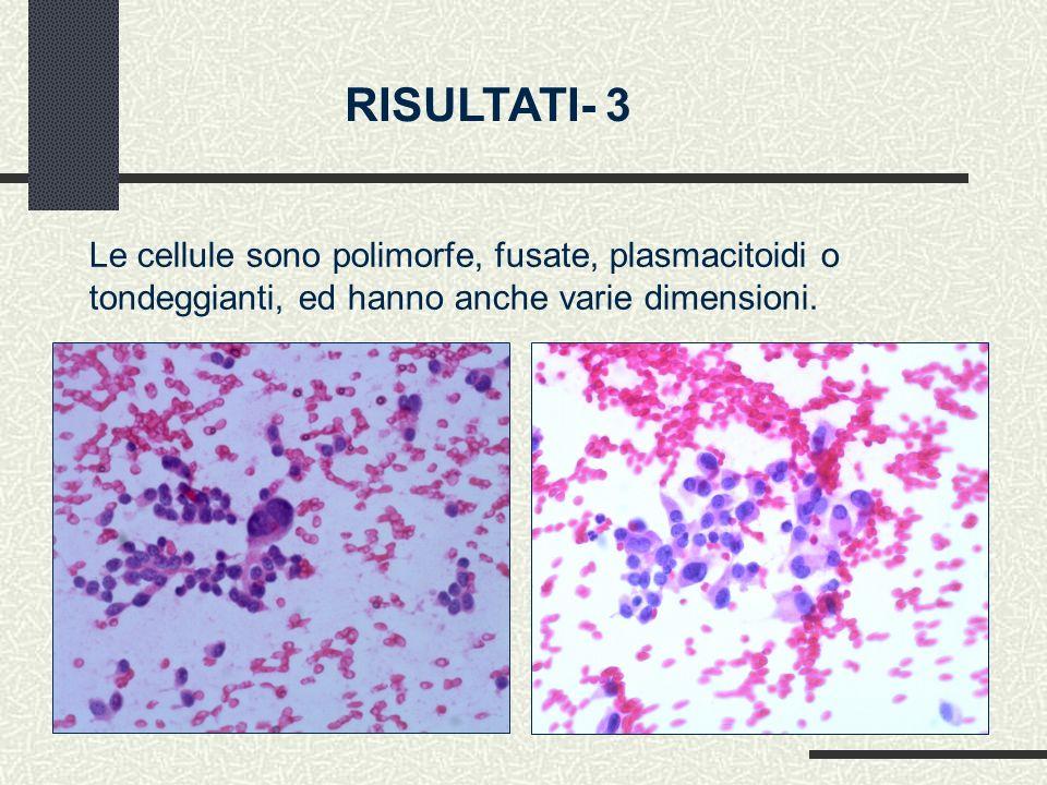 RISULTATI- 3 Le cellule sono polimorfe, fusate, plasmacitoidi o tondeggianti, ed hanno anche varie dimensioni.
