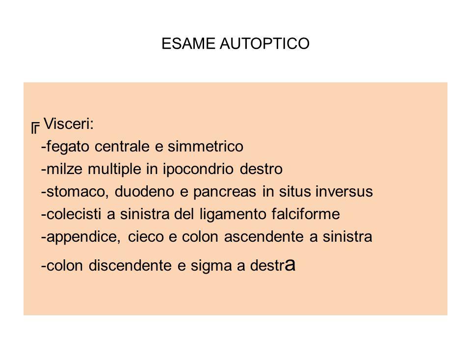 ESAME AUTOPTICO ╔ Visceri: -fegato centrale e simmetrico. -milze multiple in ipocondrio destro. -stomaco, duodeno e pancreas in situs inversus.