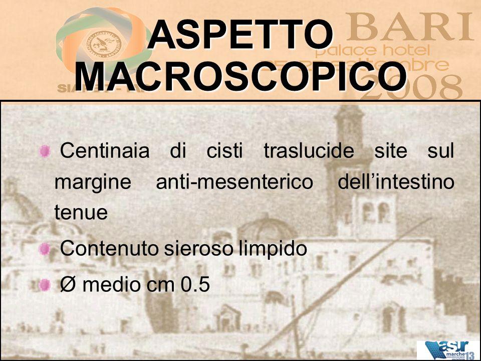 ASPETTO MACROSCOPICO Centinaia di cisti traslucide site sul margine anti-mesenterico dell'intestino tenue.
