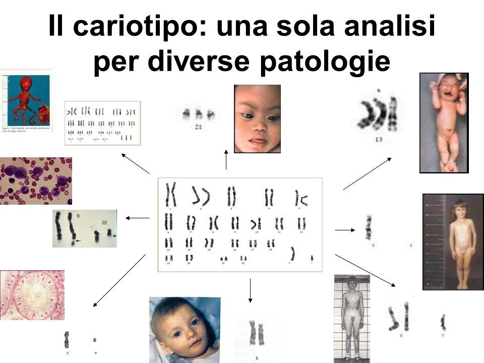 Il cariotipo: una sola analisi per diverse patologie