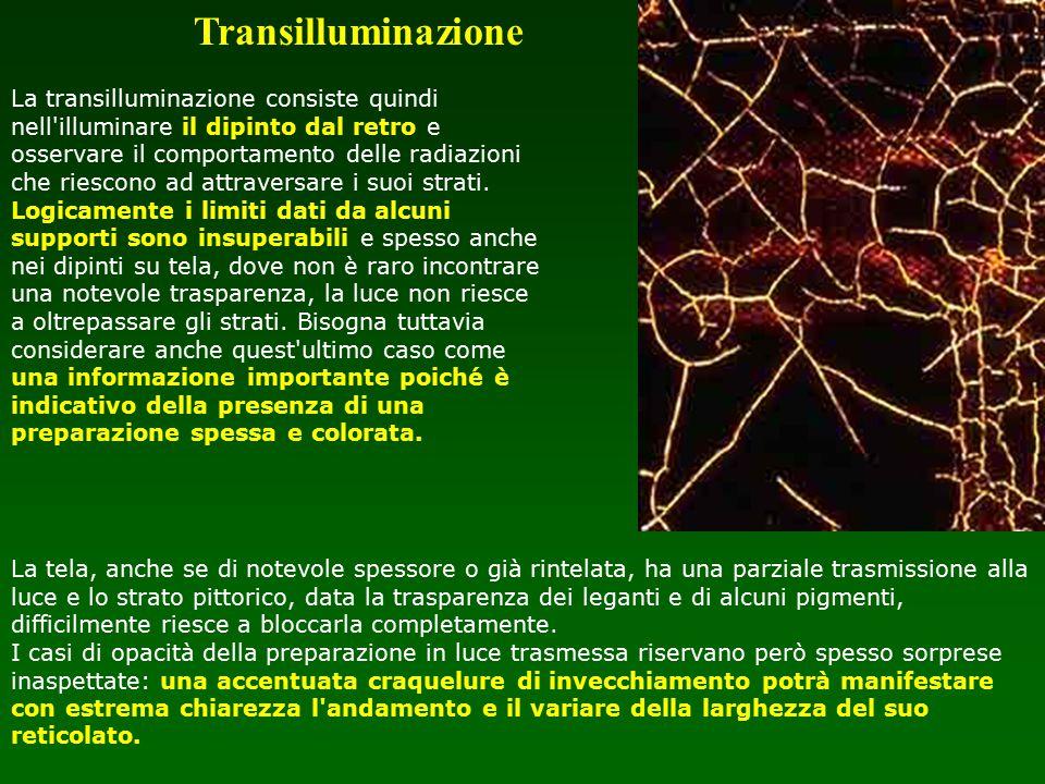 Transilluminazione