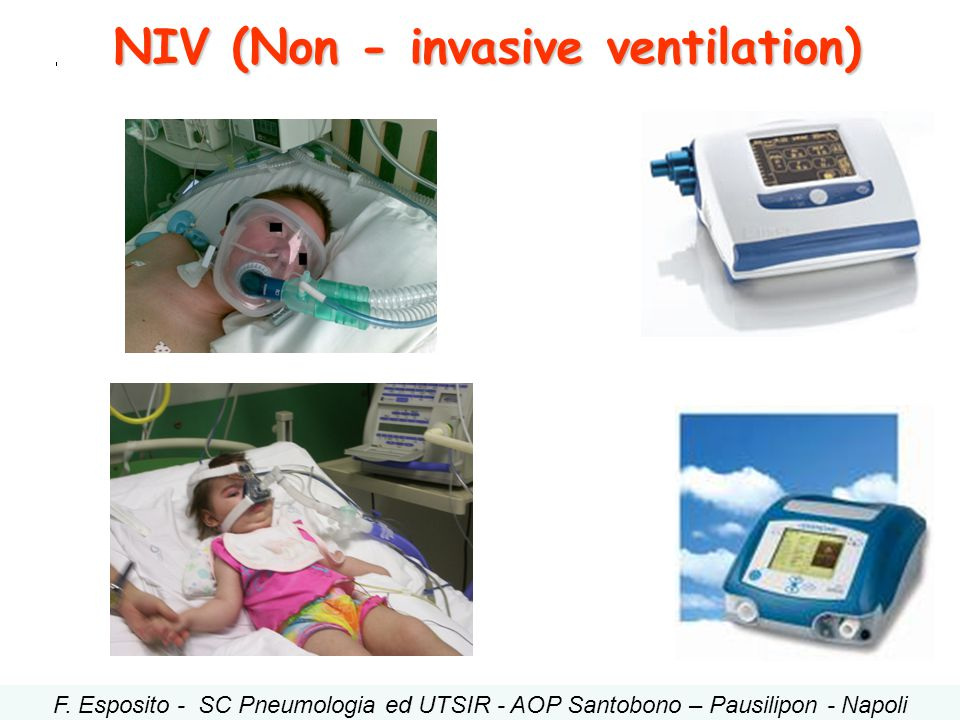 NIV (Non - invasive ventilation)