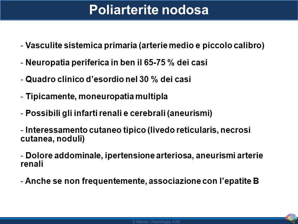 Poliarterite nodosa Vasculite sistemica primaria (arterie medio e piccolo calibro) Neuropatia periferica in ben il 65-75 % dei casi.