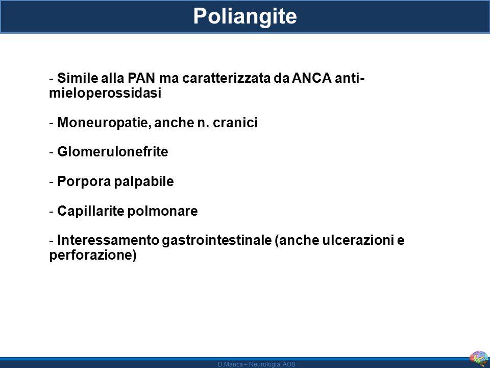 Poliangite Simile alla PAN ma caratterizzata da ANCA anti- mieloperossidasi. Moneuropatie, anche n. cranici.