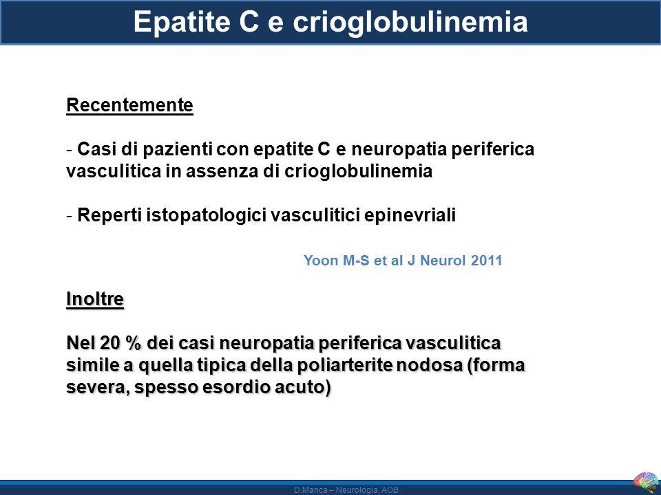 Epatite C e crioglobulinemia