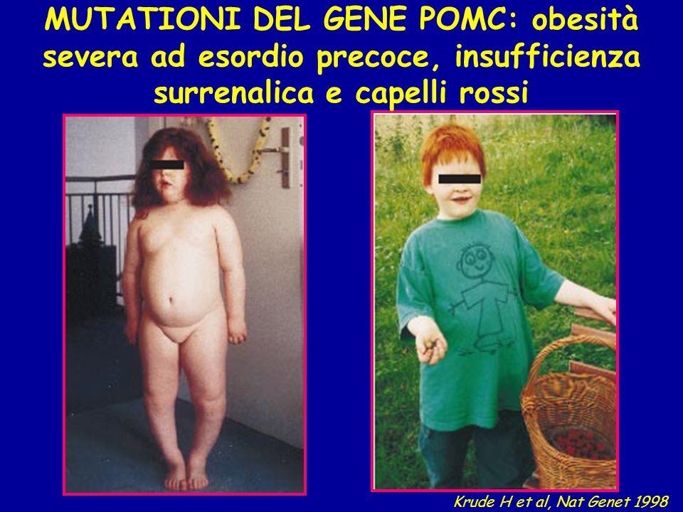 MUTATIONI DEL GENE POMC: obesità severa ad esordio precoce, insufficienza surrenalica e capelli rossi