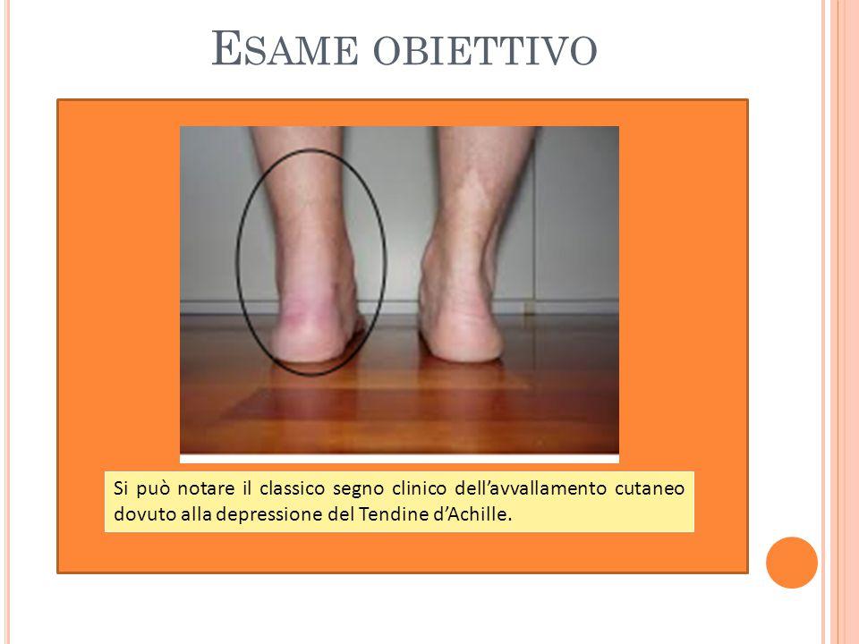 Esame obiettivo Si può notare il classico segno clinico dell'avvallamento cutaneo dovuto alla depressione del Tendine d'Achille.