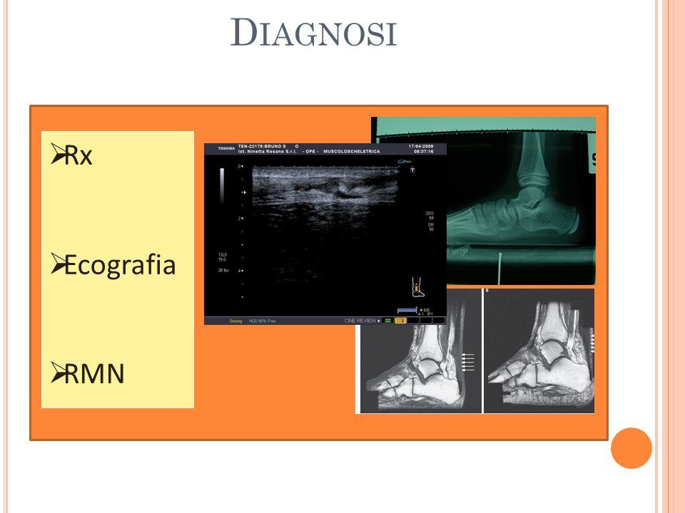 Diagnosi Rx Ecografia RMN
