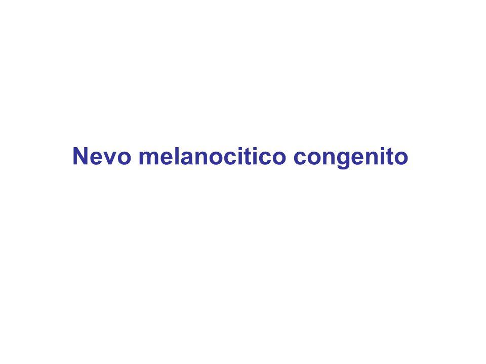 Nevo melanocitico congenito