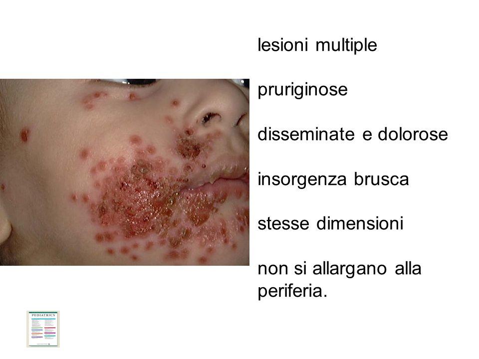 8 lesioni multiple pruriginose disseminate e dolorose