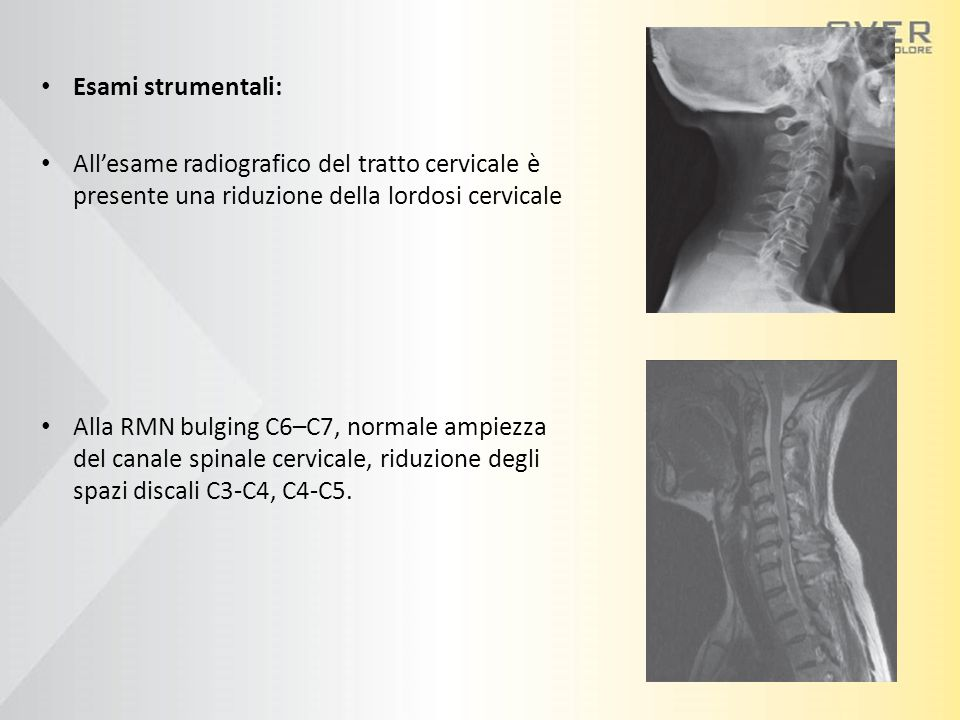 Esami strumentali: All'esame radiografico del tratto cervicale è presente una riduzione della lordosi cervicale.