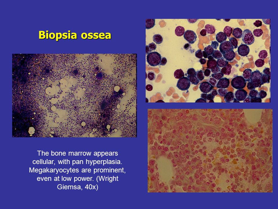 Biopsia ossea The bone marrow appears cellular, with pan hyperplasia. Megakaryocytes are prominent, even at low power. (Wright Giemsa, 40x)
