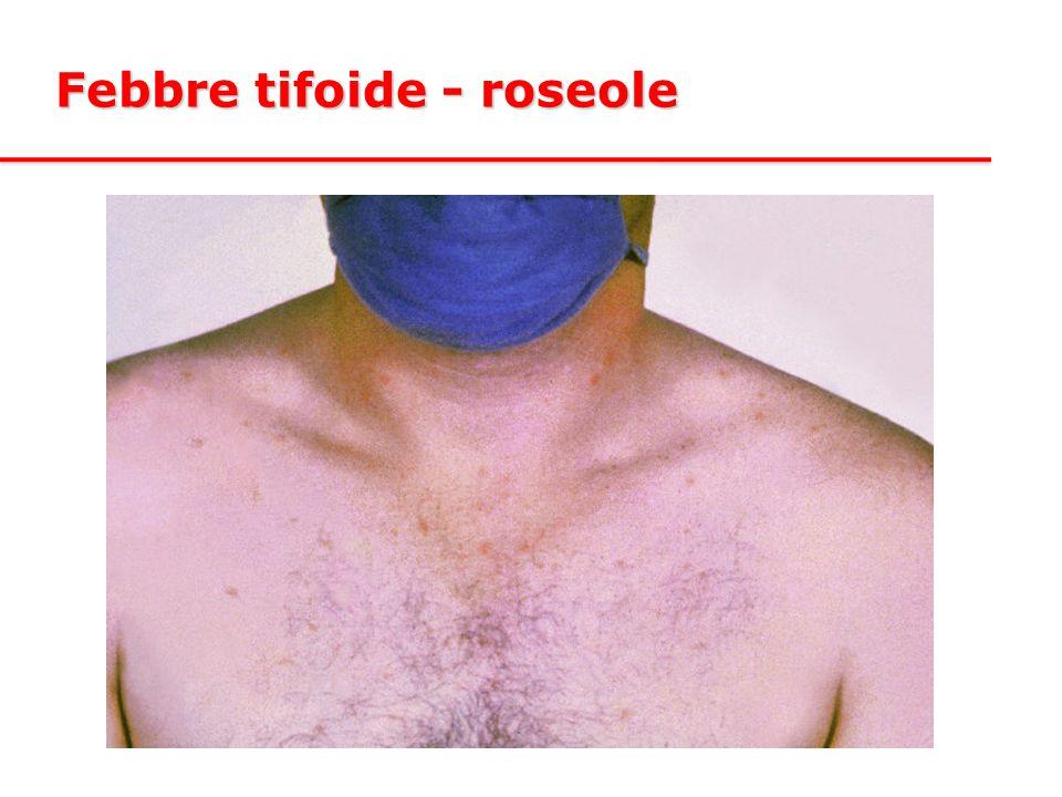 Febbre tifoide - roseole