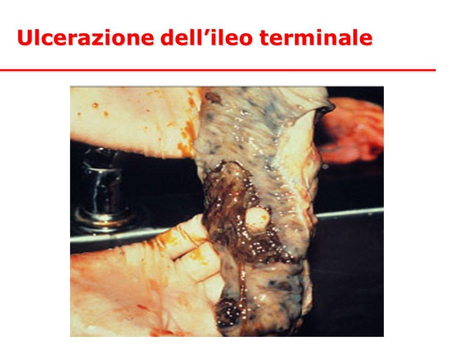 Ulcerazione dell'ileo terminale