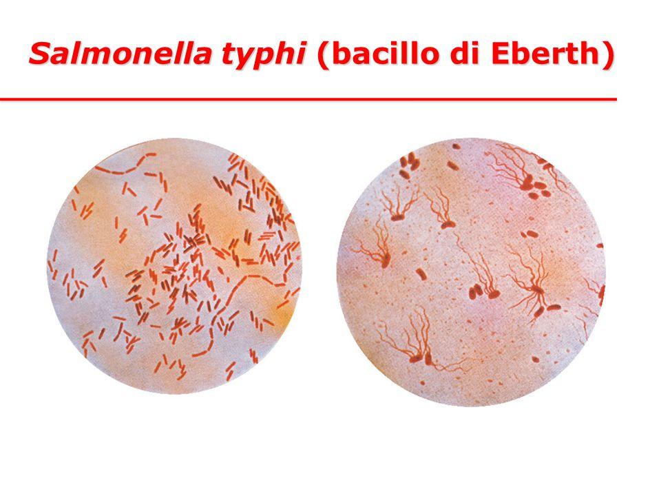 Salmonella typhi (bacillo di Eberth)