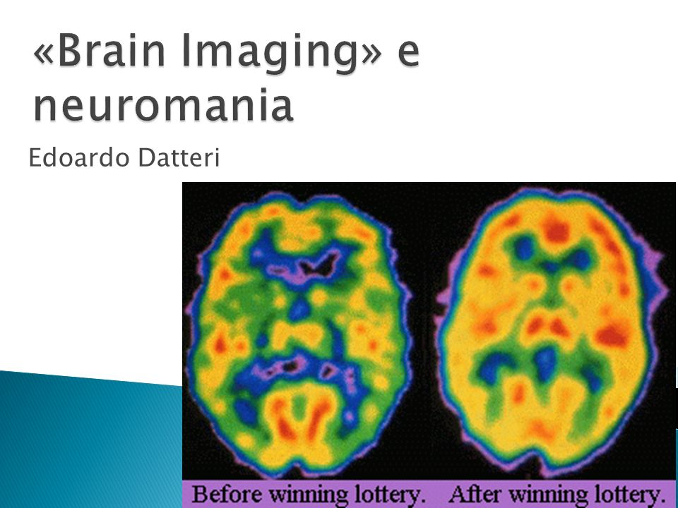 «Brain Imaging» e neuromania