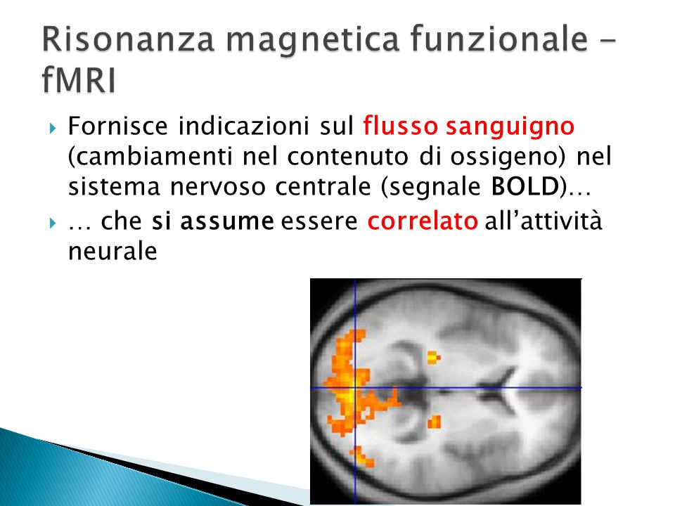 Risonanza magnetica funzionale - fMRI