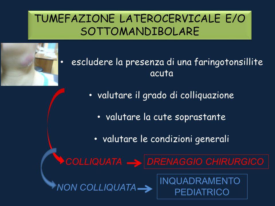 TUMEFAZIONE LATEROCERVICALE E/O SOTTOMANDIBOLARE
