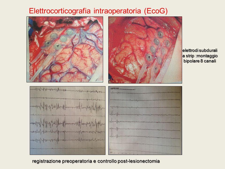 Elettrocorticografia intraoperatoria (EcoG)