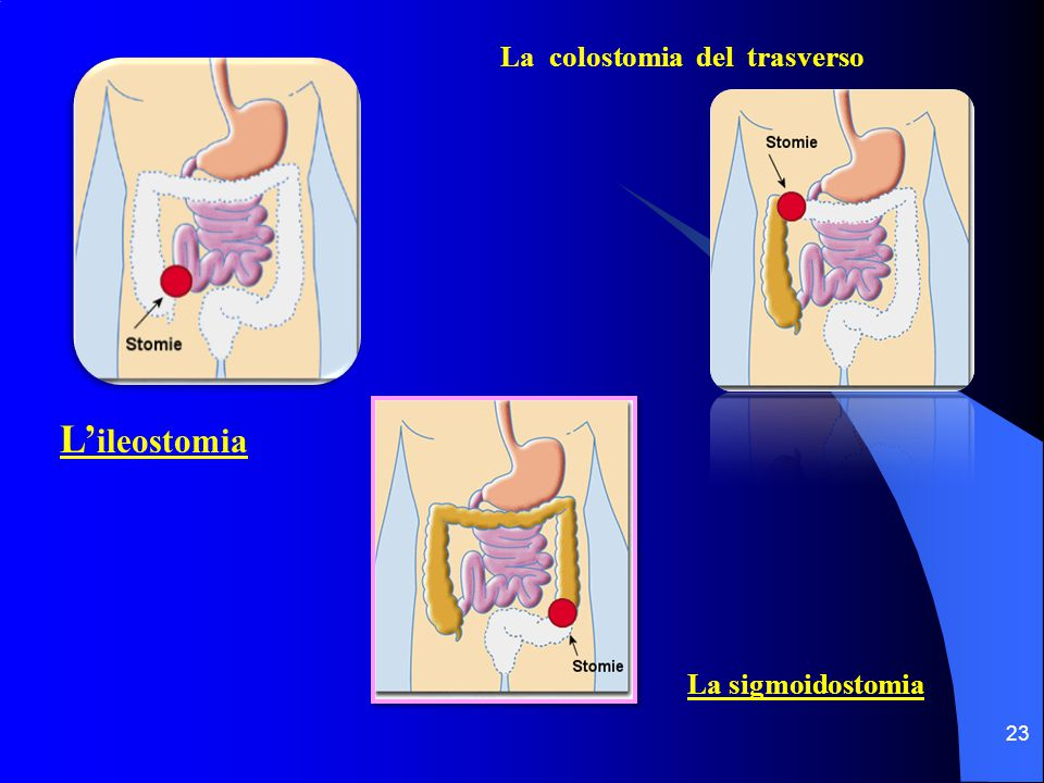 La colostomia del trasverso