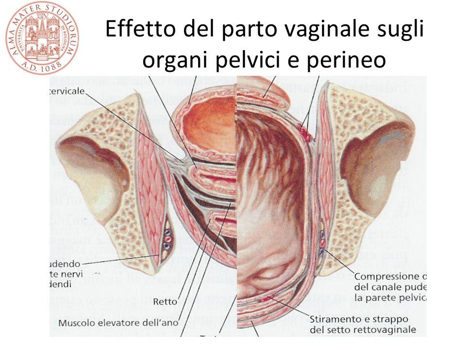 Effetto del parto vaginale sugli organi pelvici e perineo