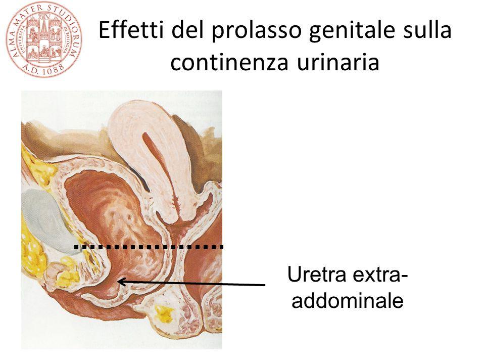 Effetti del prolasso genitale sulla continenza urinaria