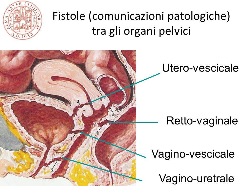 Fistole (comunicazioni patologiche) tra gli organi pelvici