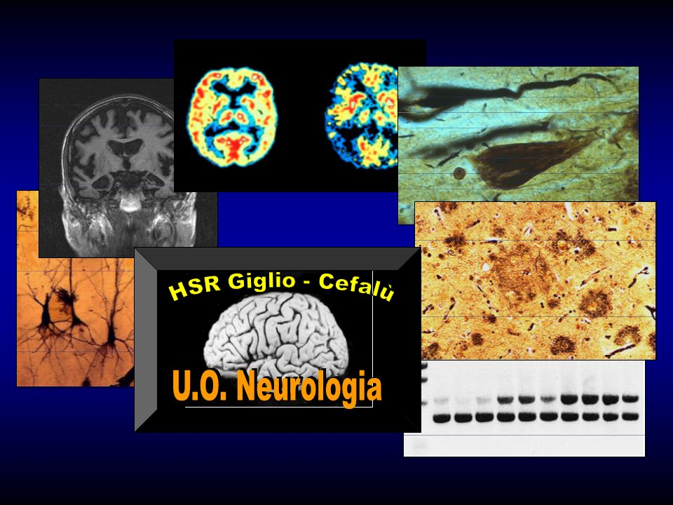2000 U.O. Neurologia HSR Giglio - Cefalù