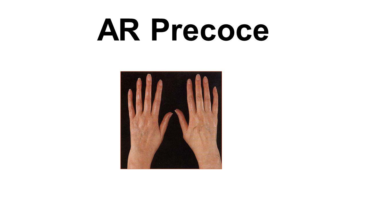 AR Precoce