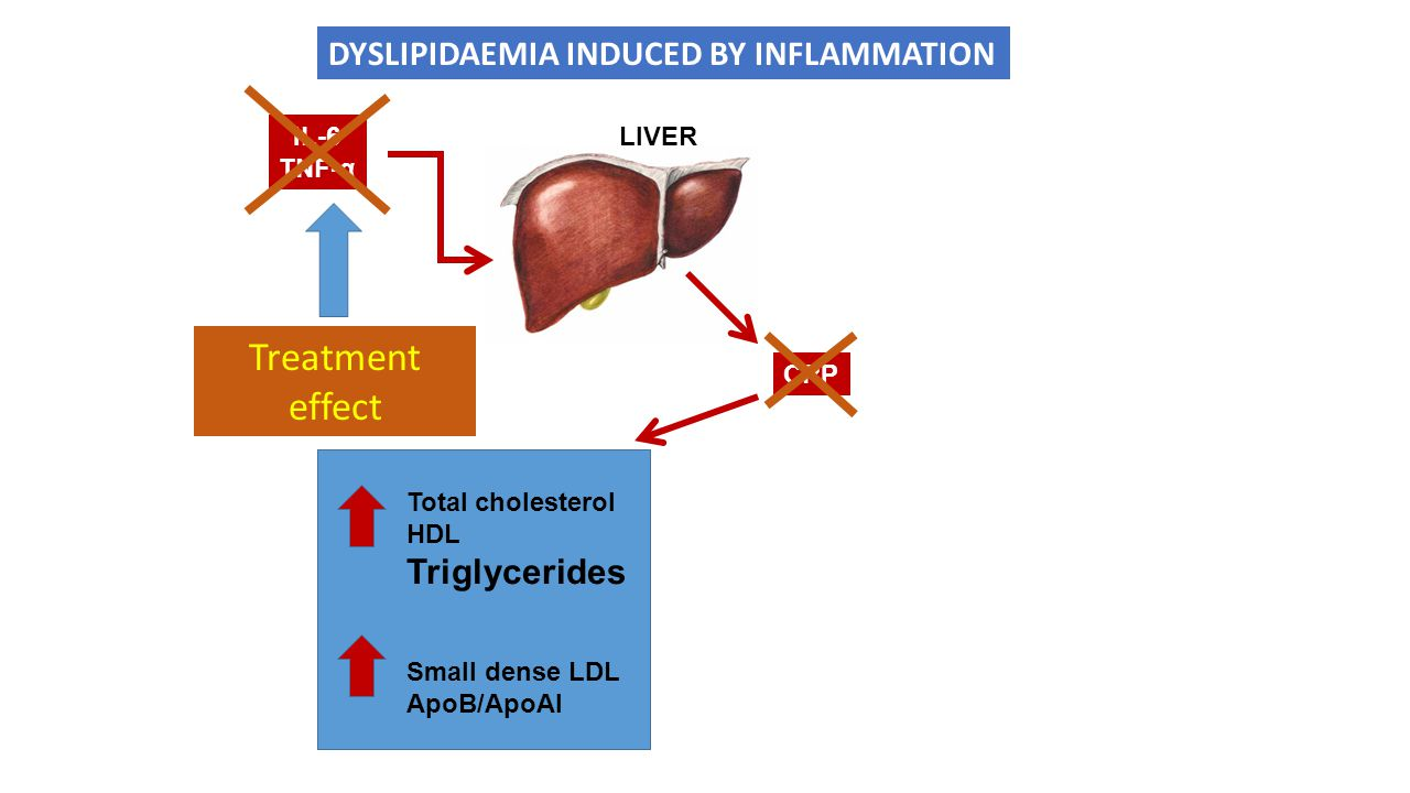 Treatment effect DYSLIPIDAEMIA INDUCED BY INFLAMMATION Triglycerides