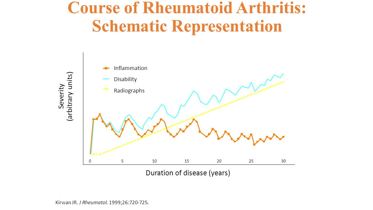 Course of Rheumatoid Arthritis: Schematic Representation