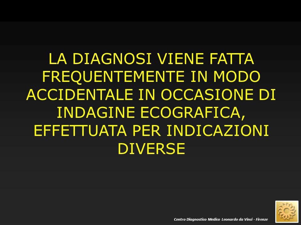 LA DIAGNOSI VIENE FATTA FREQUENTEMENTE IN MODO ACCIDENTALE IN OCCASIONE DI INDAGINE ECOGRAFICA, EFFETTUATA PER INDICAZIONI DIVERSE