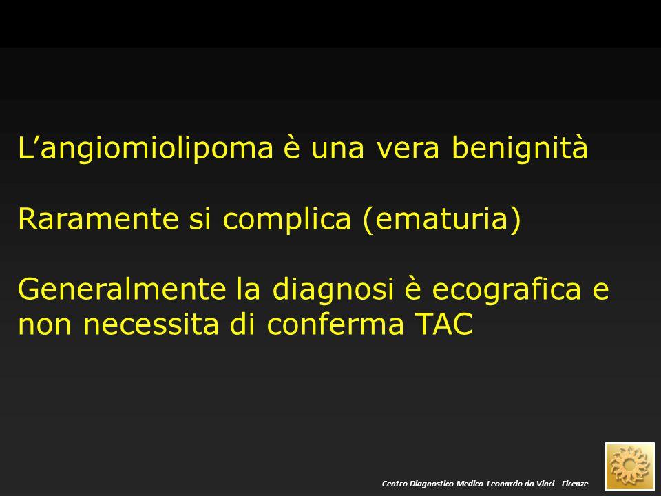 L'angiomiolipoma è una vera benignità Raramente si complica (ematuria) Generalmente la diagnosi è ecografica e non necessita di conferma TAC