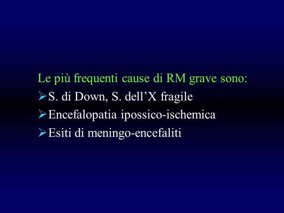 Le più frequenti cause di RM grave sono: