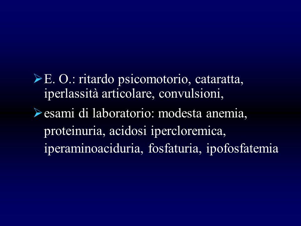 E. O.: ritardo psicomotorio, cataratta, iperlassità articolare, convulsioni,