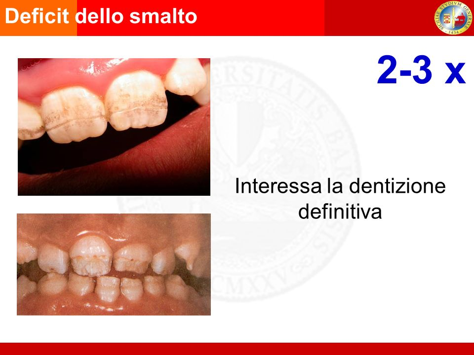 Interessa la dentizione definitiva