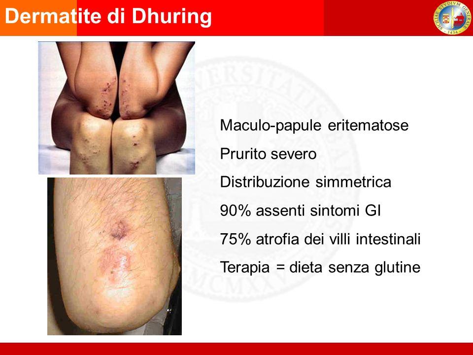 Dermatite di Dhuring Maculo-papule eritematose Prurito severo