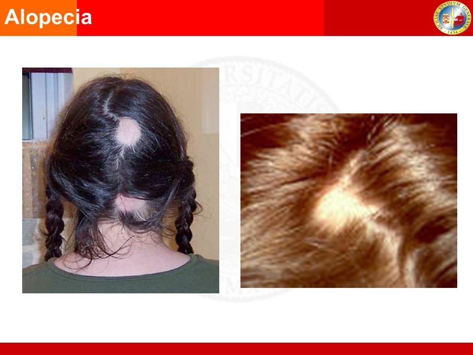 Alopecia Produzione di feci cremose AGA1998 Disturbo intestinale