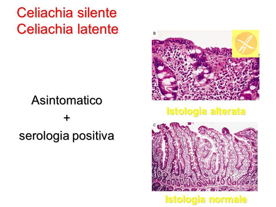 Celiachia silente Celiachia latente
