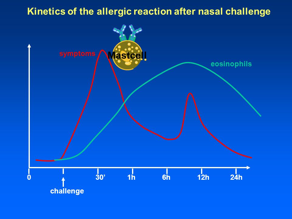 Kinetics of the allergic reaction after nasal challenge