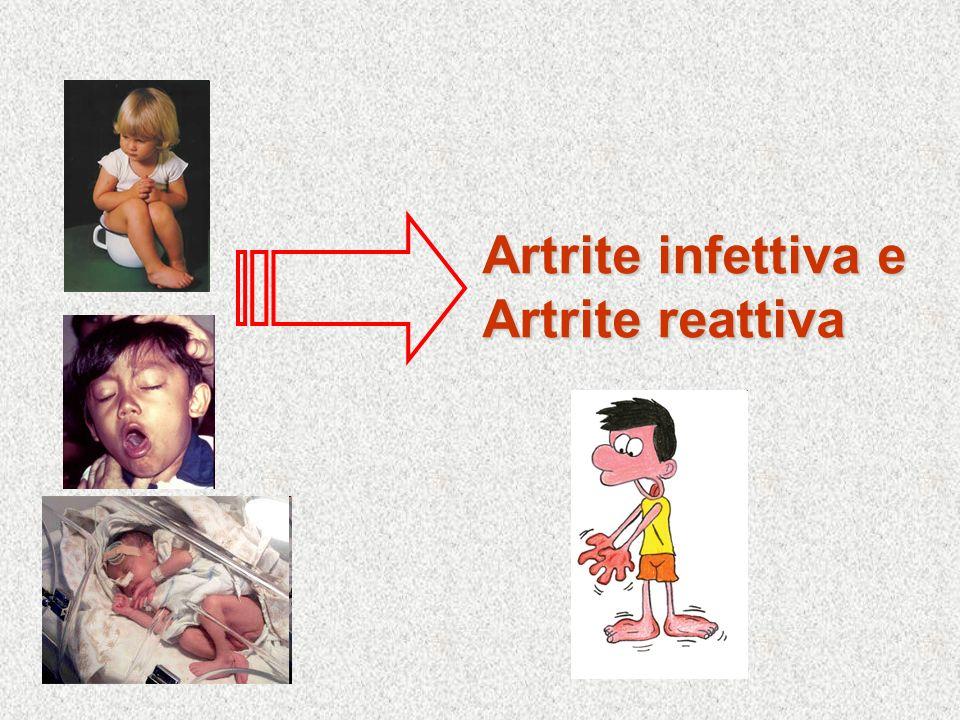 Artrite infettiva e Artrite reattiva