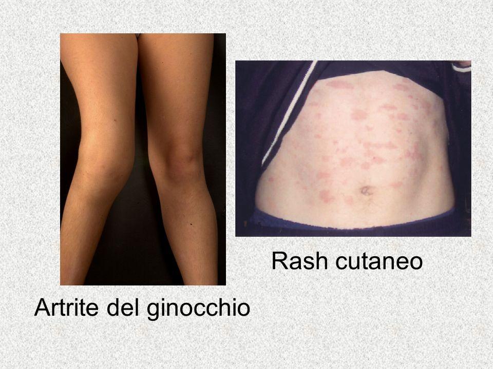 Rash cutaneo Artrite del ginocchio