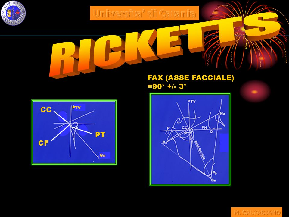 RICKETTS Universita' di Catania FAX (ASSE FACCIALE) =90° +/- 3° CC CF