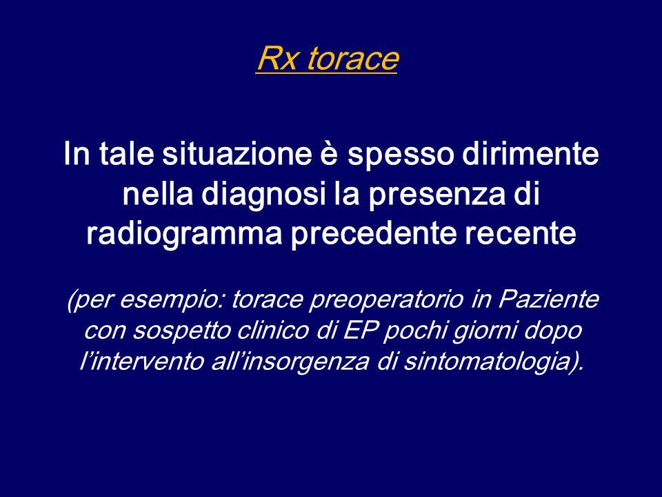 Rx torace In tale situazione è spesso dirimente nella diagnosi la presenza di radiogramma precedente recente.