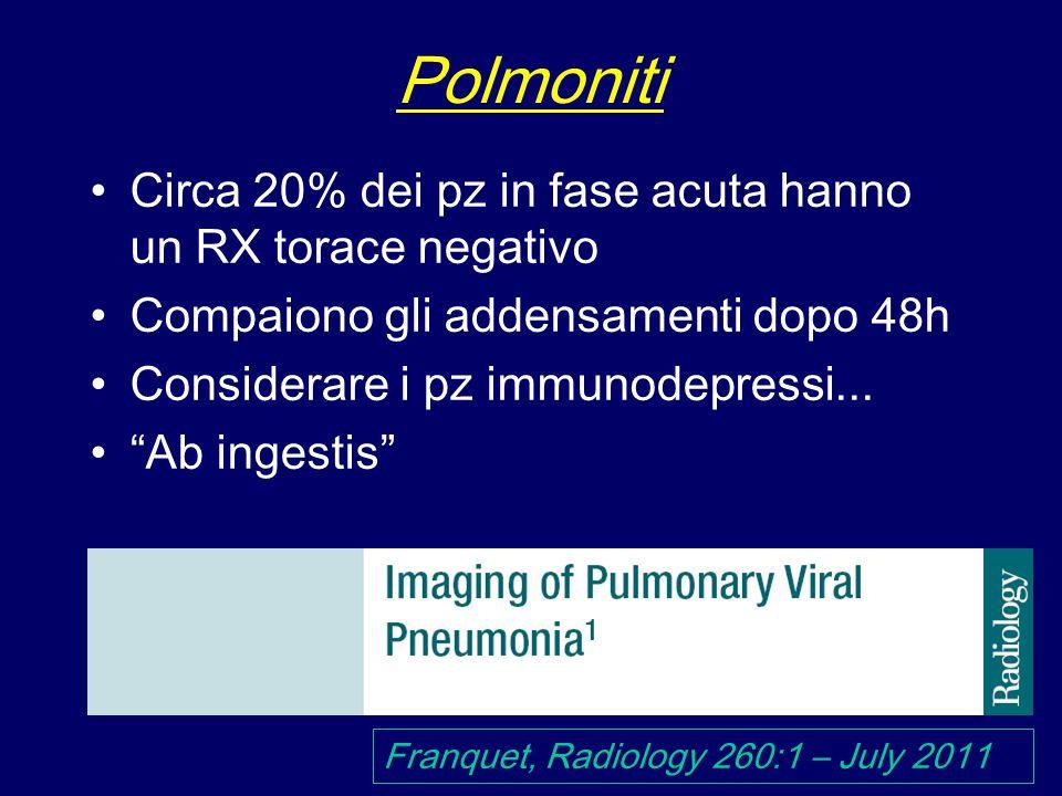 Polmoniti Circa 20% dei pz in fase acuta hanno un RX torace negativo