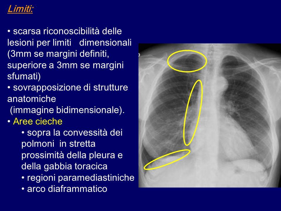 Limiti: scarsa riconoscibilità delle lesioni per limiti dimensionali (3mm se margini definiti, superiore a 3mm se margini sfumati)