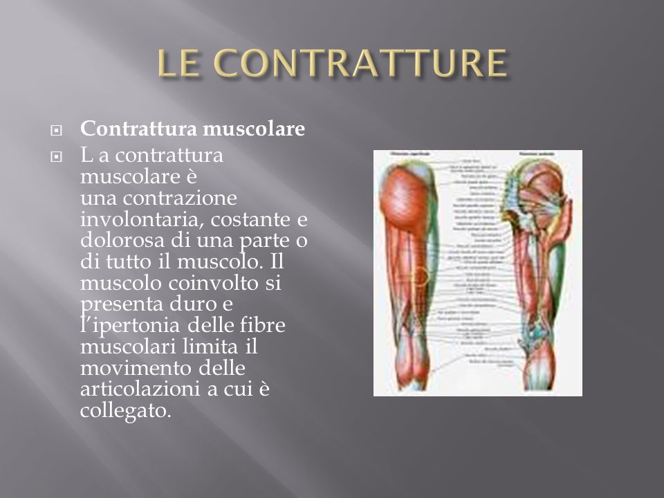 LE CONTRATTURE Contrattura muscolare
